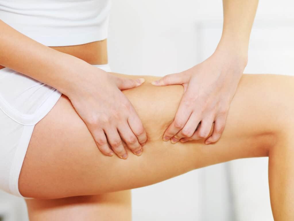 Depil&Young dispose de solutions pour combattre efficacement la cellulite