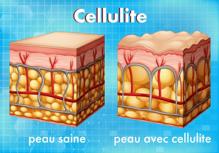 illustration de la structure d'une peau saine et d'une peau affecté par la cellulite